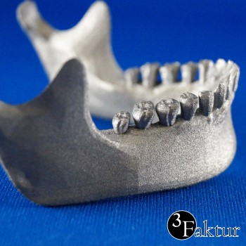 SLM Direct metal 3d printing titanium jaw